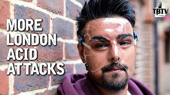Tim Black Talks Acid Attacks, Vasectomies, MS13, & More